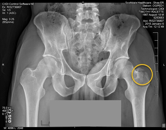 Tim's Hip